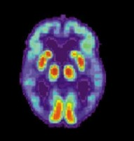 PET Scan of Alzheimer's Disease Brain. (Credit: NIH/National Institute On Aging)