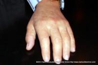 Gene Belt's prosthetic hand