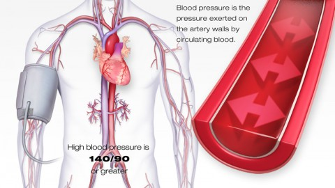 American Heart Association High Blood Pressure Illustration. (American Heart Association)