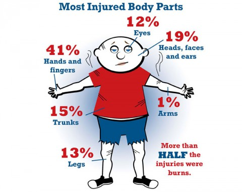 Most Injured Body Parts from Firework Accidents.