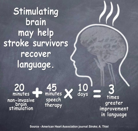 Stimulating brain may help stroke survivors recover language function.
