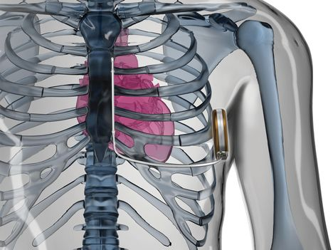 Boston Scientific S-ICD® System - Torso. (copyright Boston Scientific S-ICD® System)