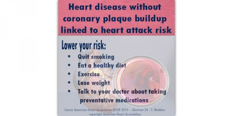 Heart disease without coronary plaque buildup linked to heart attack risk