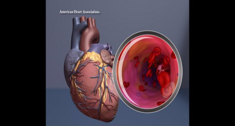 Heart illustration with artery close up. (American Heart Association)
