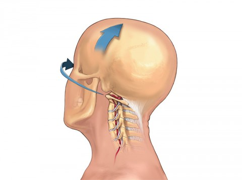 Vertebral artery as it passes through the neck vertebrae of the spine and enters the skull base. Arrows indicate head movement during lateral rotation and lateral flexion, motions that may be performed as part of a neck manipulation. (American Heart Association)