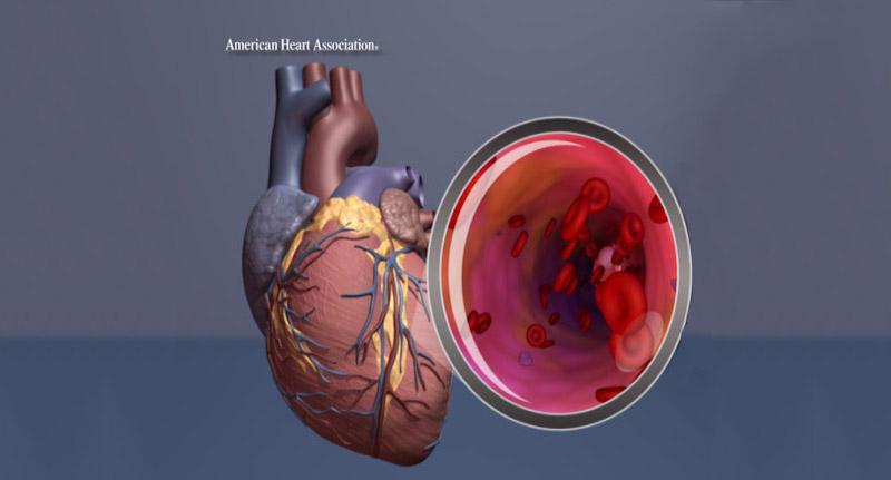 Post Traumatic Stress Disorder May >> American Heart Association Says Post Traumatic Stress Disorder May