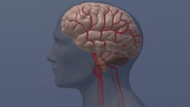 Human Brain Image. (American Heart Association)