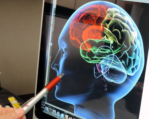 Doctor reviewing brain image up close. (American Heart Association)