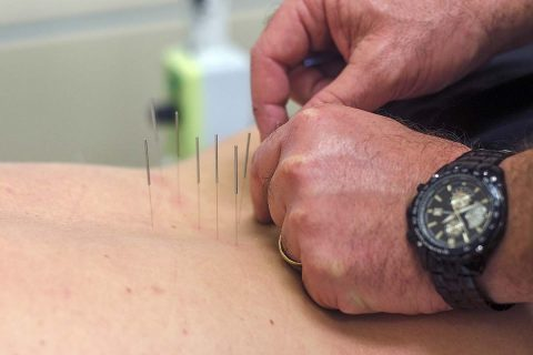 Charles Brill, a physician's assistant who works at the Fort Campbell Intrepid Spirit Center, uses acupuncture to relieve a patient's pain March 20, 2017. After inserting all of the needles, Brill will use a small amount of electricity to stimulate the needles, which often results in lowered chronic pain for patients at the center, which uses a multidisciplinary approach to treat traumatic brain injuries. (Leejay Lockhart, Fort Campbell Public Affairs Office)