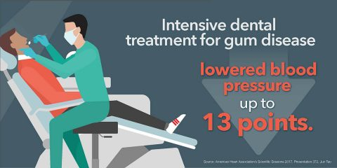 Intensive dental treatment for gum disease lowered blood pressure up to 13 points. (American Heart Association)