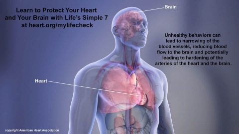 Learn to Protect Your Heart and Your Brain with Life's Simple 7 at www.heart.org/mylifecheck Unhealthy behaviors can lead to narrowing of the blood vessels, reducing blood flow to the brain and potentially leading to hardening of the arteries of the heart and the brain. My Life Check - Life's Simple 7. (American Heart Association)