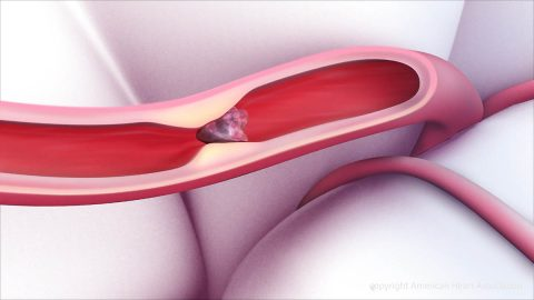 A clot within a blood vessel interrupting blood flow to the brain. (American Heart Association)