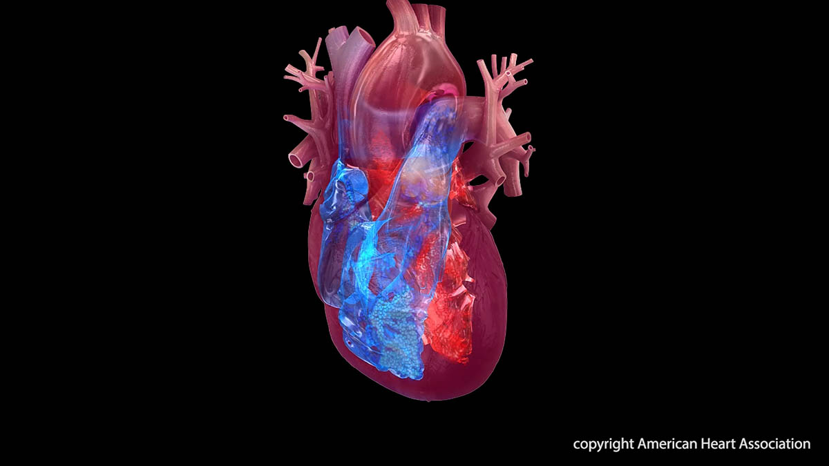 A test for specific genetic mutations successfully informed blood-thinner treatment selection following stent placement to open clogged blood vessels, leading to significantly fewer complications. (American Heart Association)