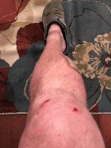 Hank's Leg Injury