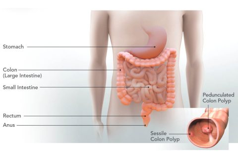 Mail-in colon cancer screening may end colonoscopy for most. (CDC)