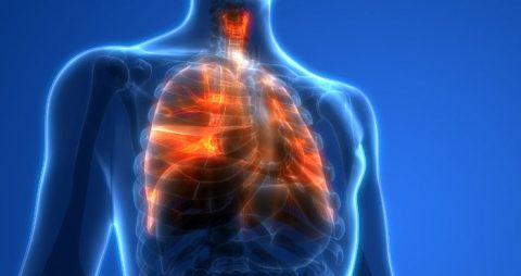 Tabrecta is the first FDA-approved therapy to treat non-small cell lung cancer (NSCLC).
